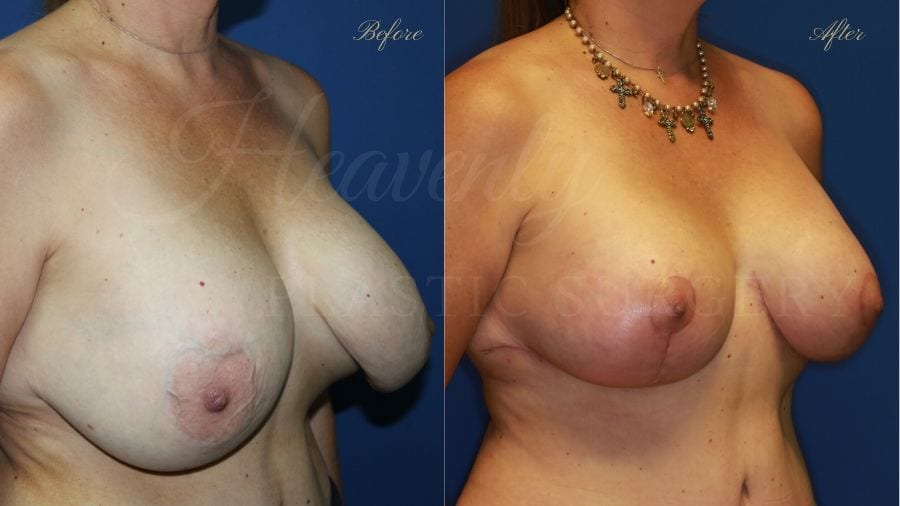 Breast Implant Exchange and Breast Lift - 310cc SRM Silicone Implants with Wise pattern Mastopexy (Anchor Scar), capsular contracture, breast implant rupture