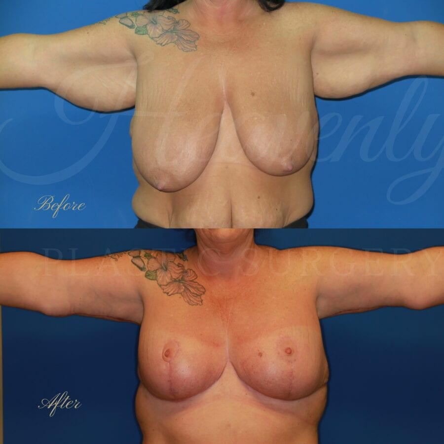 Plastic surgery, plastic surgeon, arm lift, breast lift, breast reduction, brachioplasty