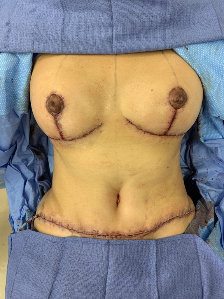 Completed tummy tuck and Mommy Makeover)