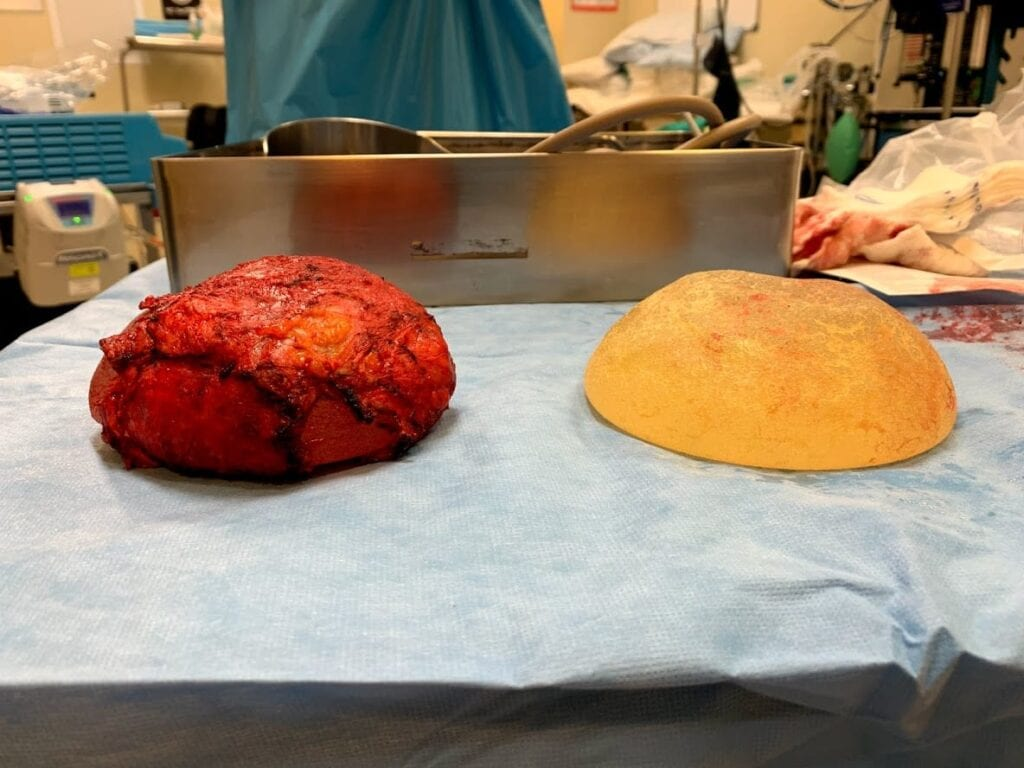 total capsulectomy, breast implant removal, breast explantation
