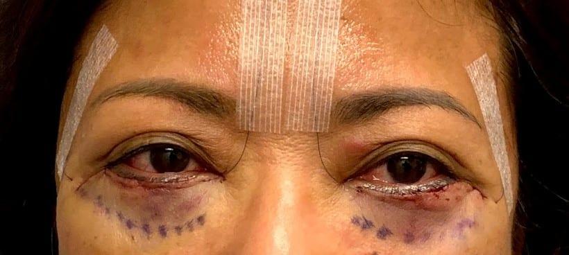 lower blepharoplasty, immediately after