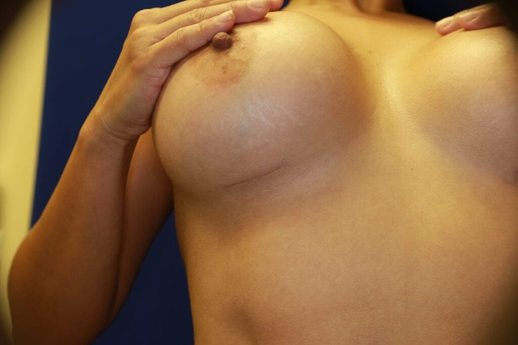 Breast fold scar, breast crease scar, breast augmentation, breast aug, plastic surgery, plastic surgeon