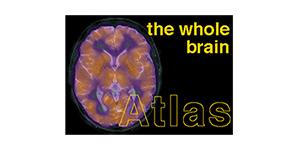 the whole brain Atlas