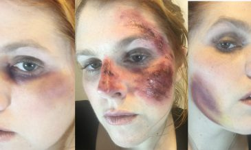 wound makeup feature weeks 6-7
