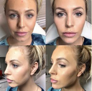 Botox Results