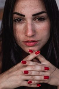 IPL Treatment Freckles