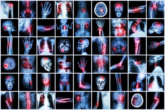 Chronic Inflammation X-ray