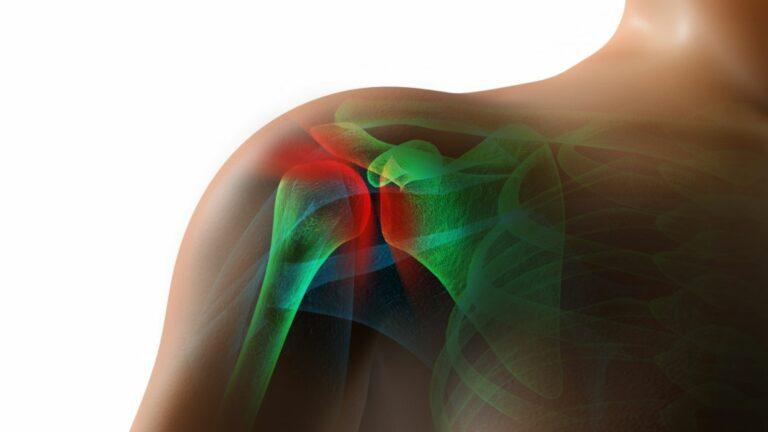 7 Stretching & Strengthening Exercises for a Frozen Shoulder