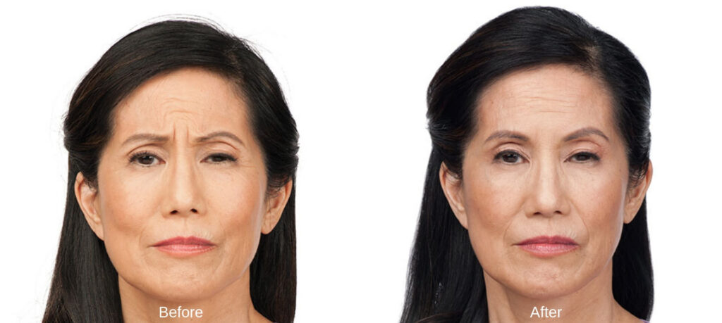 before and after botox cosmetics