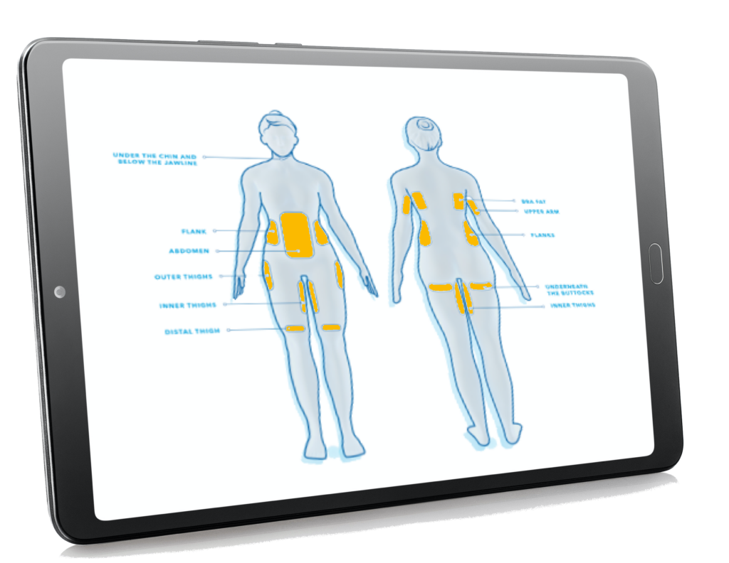 coolsculpting treatment areas defined