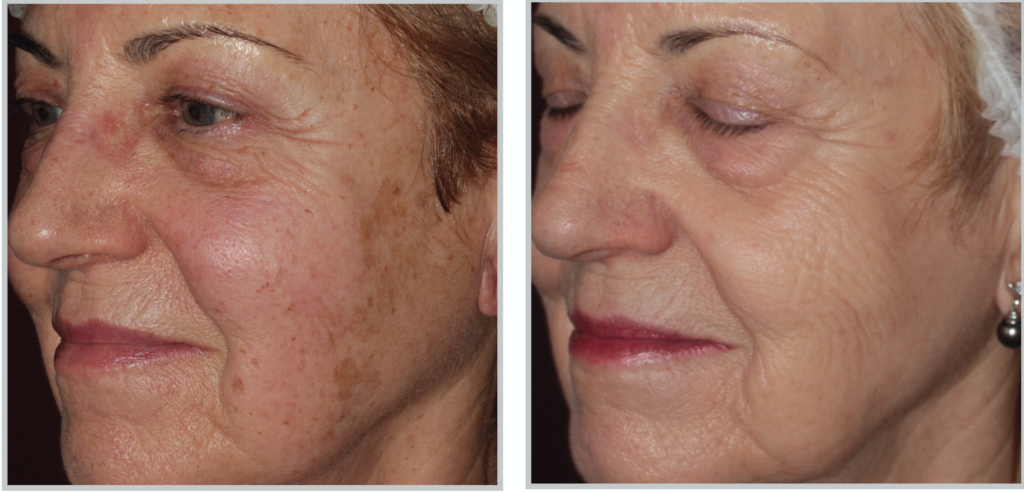 BBL Photo Facial Amazing Results