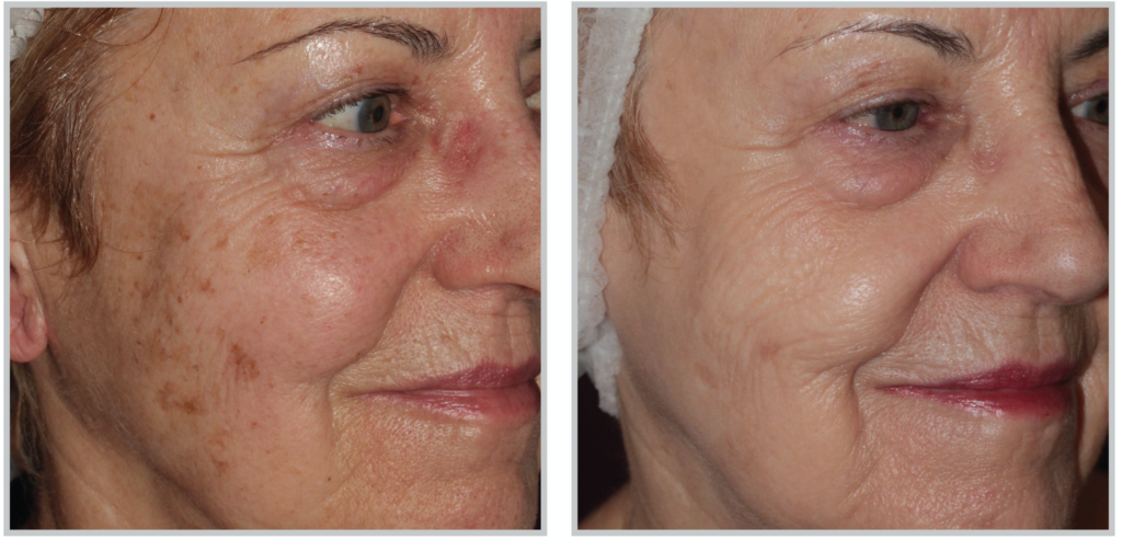 BBL Photo Facial - Dark spots gone