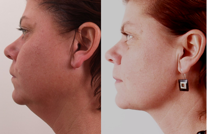 Exilis for double chin
