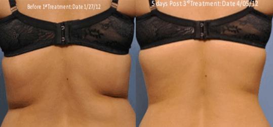 Exilis reduces back fat