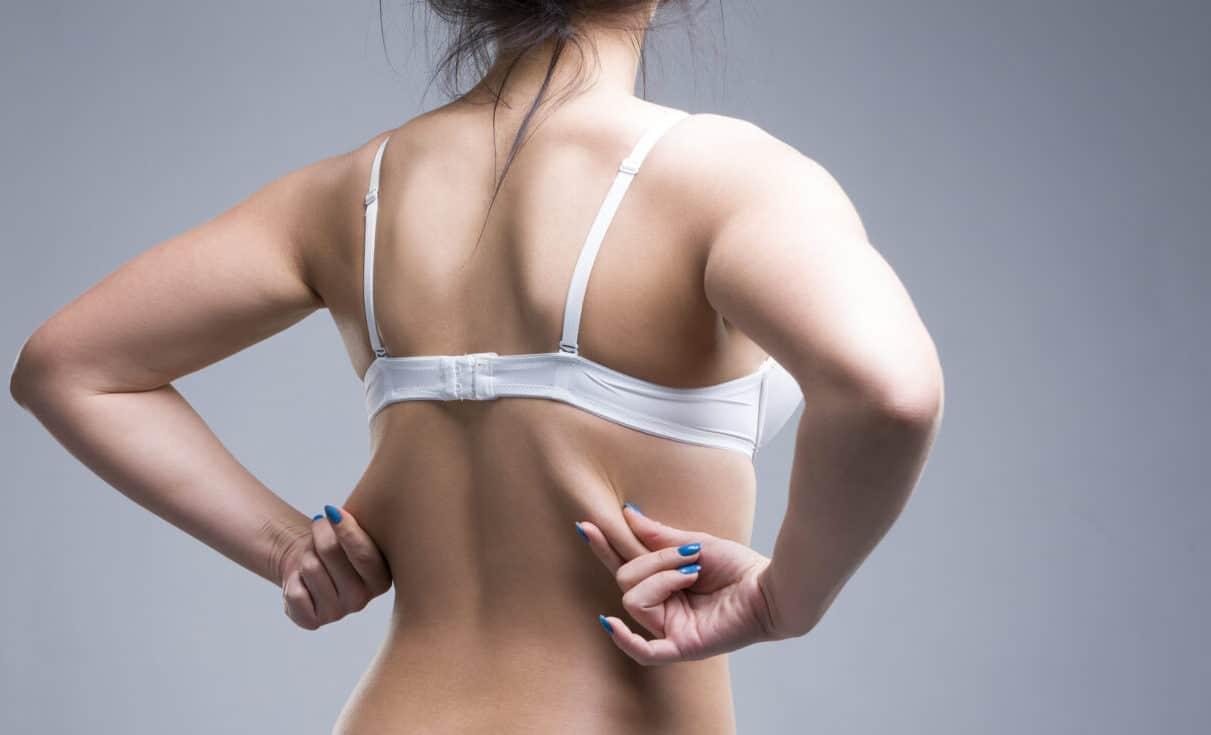 exilis for back fat