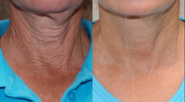 Exilis skin tightening for neck