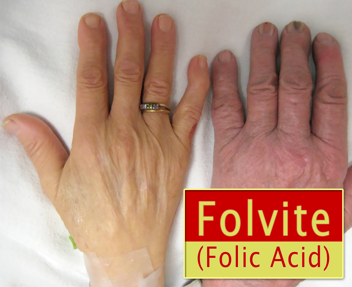 Folvite (Folic Acid)