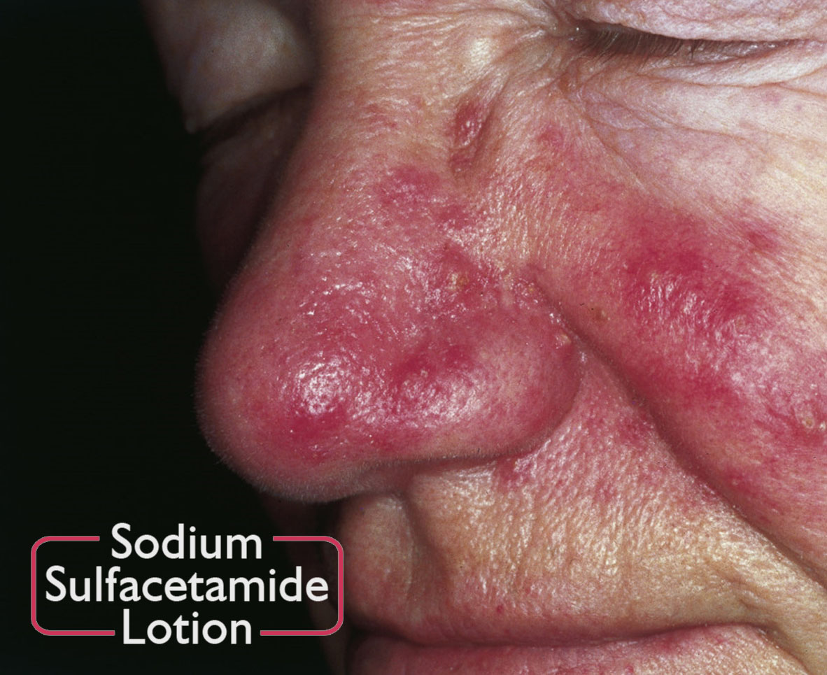Sodium Sulfacetamide Lotion