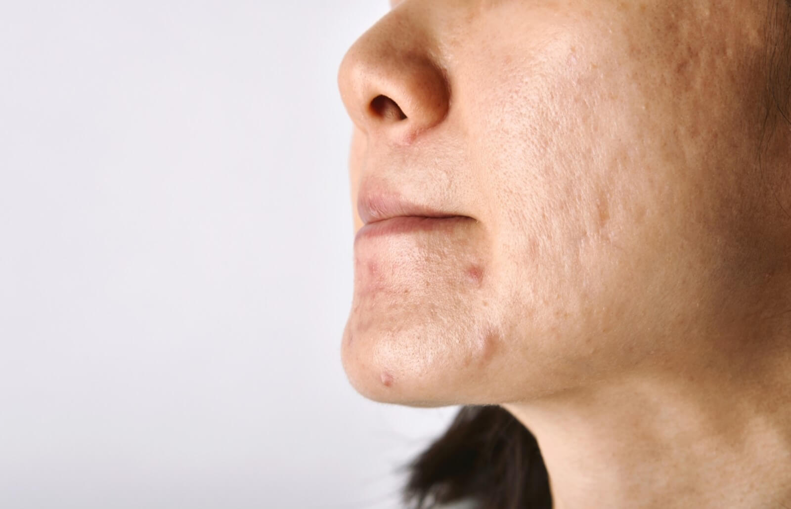 Acne Scars: How to Rid Yourself of These Battle Wounds