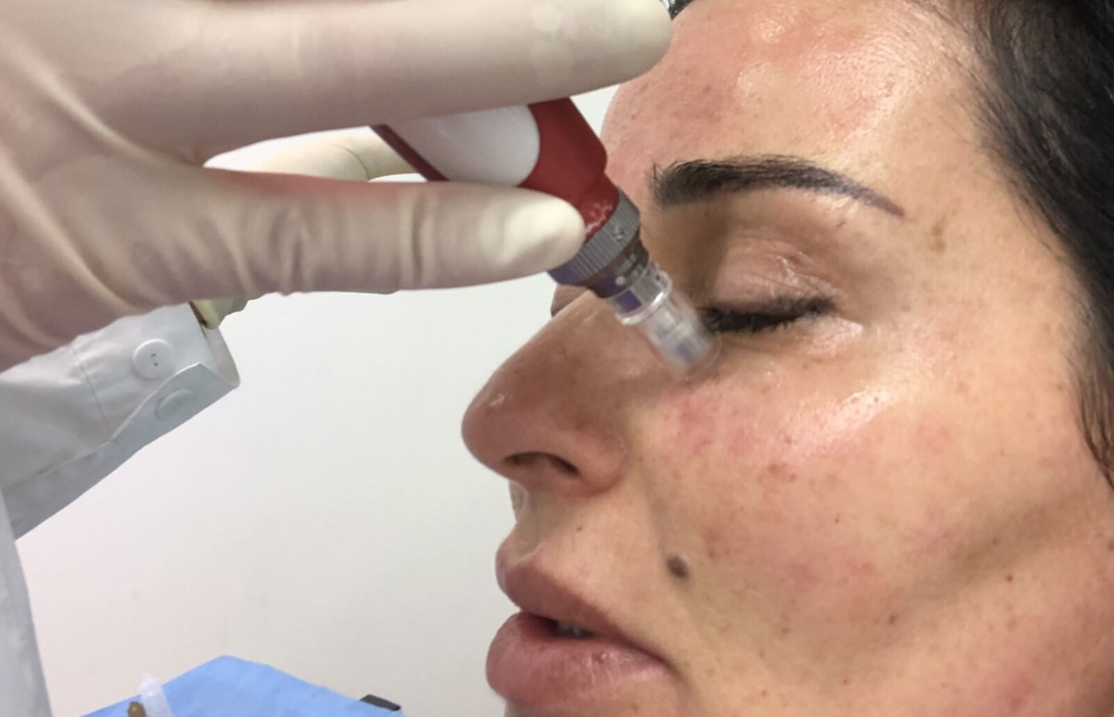 Microneedling PRP: The Holy Grail of Restorative Treatments