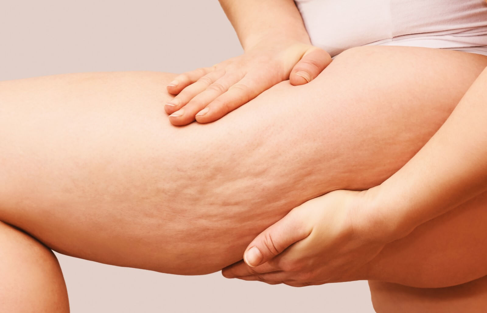 Cellfina: Treatment for Cellulite