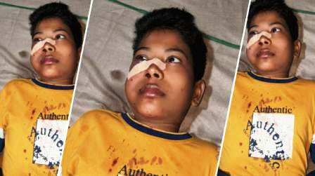 Jaitpur-Innocent injured in fighting and firing