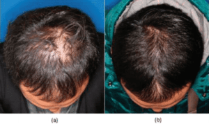 36 year-old male patient before and after photographs after six sessions of stem cell therapy