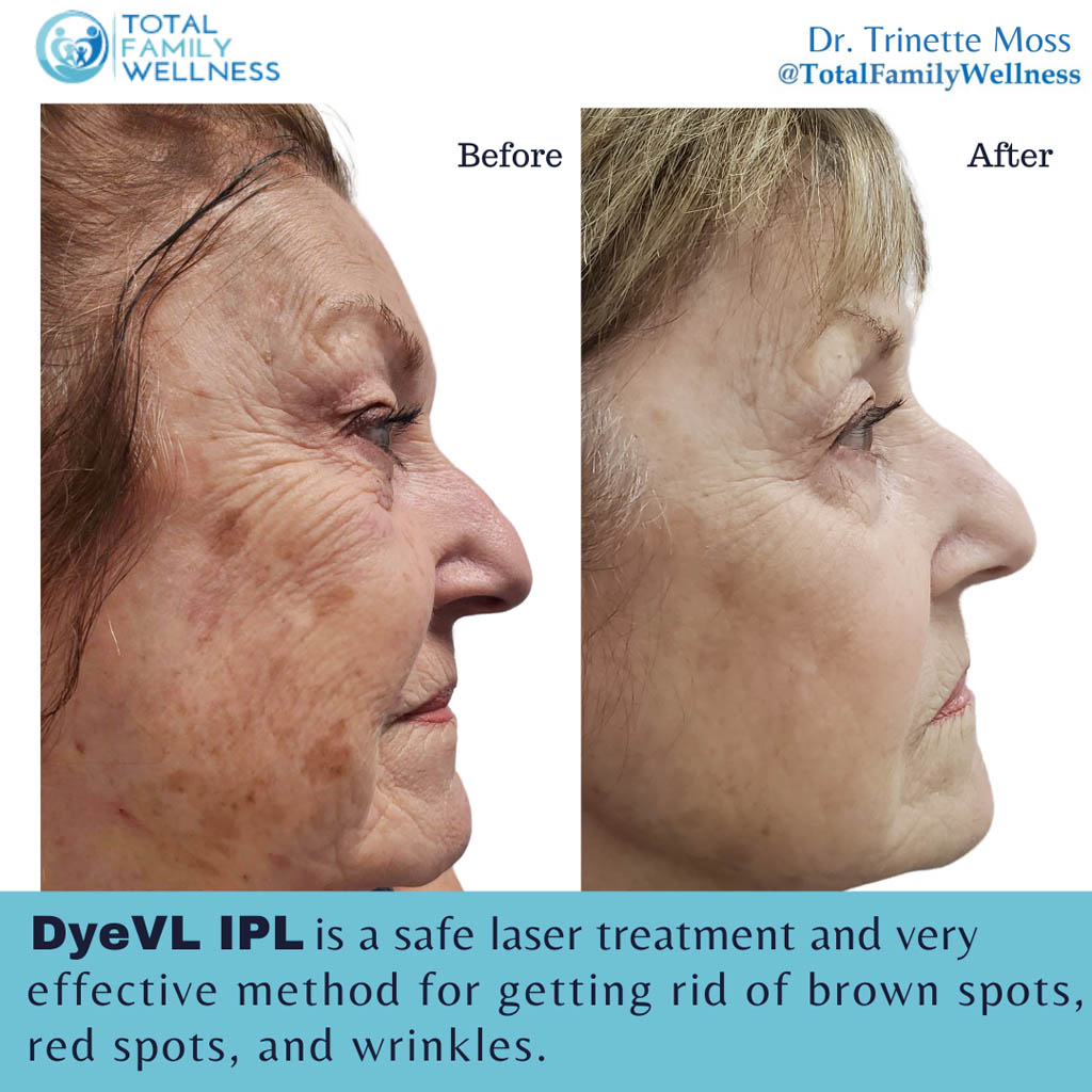 DyeVL IPL Before and After