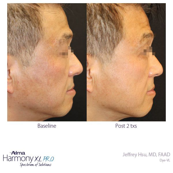 Laser Treatment Before and After Picture