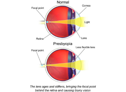 Diagram of normal eye vs. eye with presbyopia. The lens ages and stiffens, bringing the focal point behind the retina and causing blurry vision.