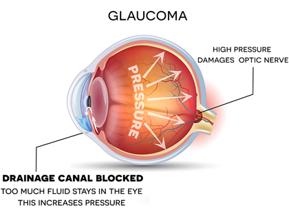 Diagram of eye with glaucoma. Drainage canal is blocked, and too much fluid stays in the eye increasing the pressure. High pressure damages the optic nerve.