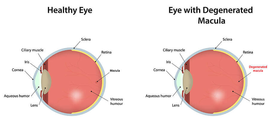 Diagram comparing healthy eye vs. eye with degenerated macula