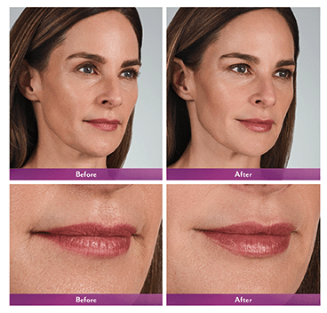 volbella before and after