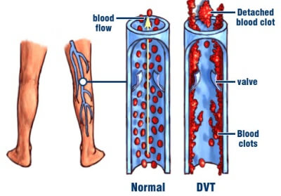 Deadly Blood Clots