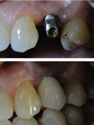 Implant-with-porcelain-crown
