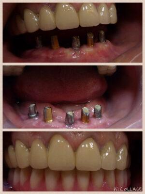 Implants-with-fixed-bridge