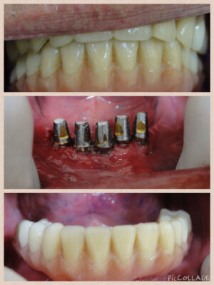 Implants-with-fixed-dentures