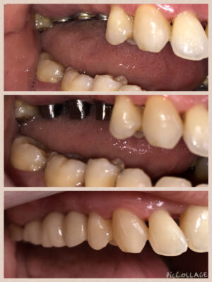 Implants-with-porcelain-crowns
