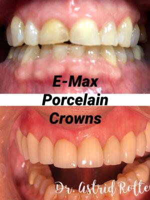 Porcelain Crowns-1