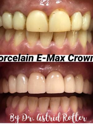 Porcelain Crowns2-2