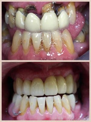 Porcelain-bridge-and-partial-dentures