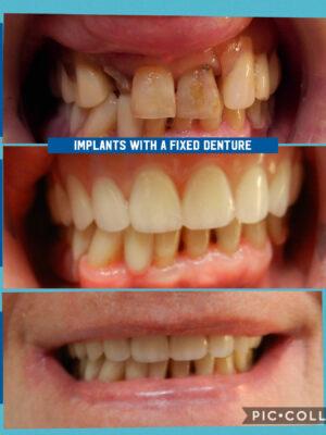 implants-w-dentures