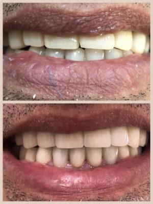 implants-with-porcelain-crowns-and-bridges