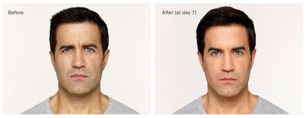Elgin Botox Treatment, Elgin Wrinkle Reduction