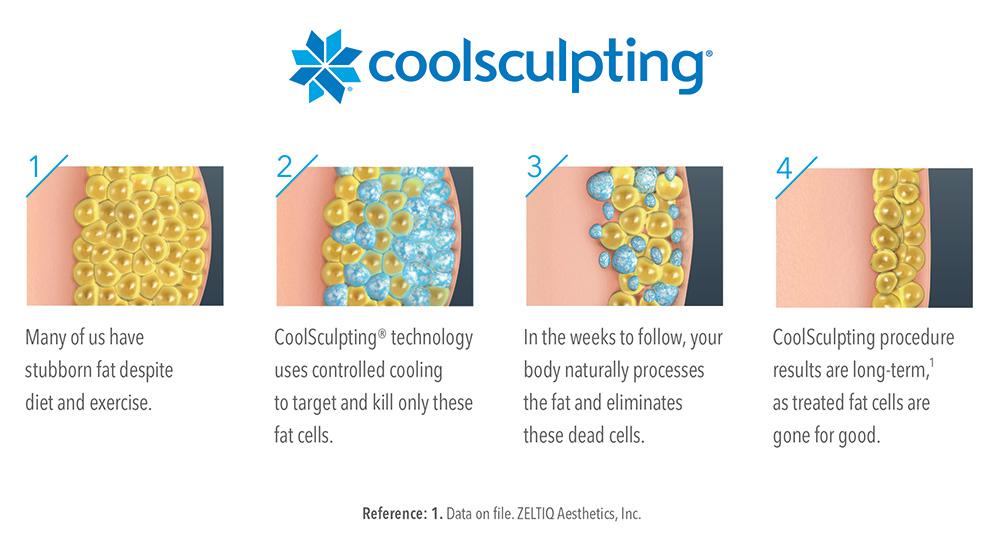 how-coolsculpt-works