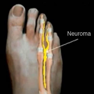 Neuroma Treatment