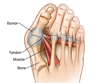 A bunion is poor alignment of the big toe. It may cause a bony growth at the base of the toe. A bunion can cause pain, swelling, redness, and other symptoms. Dr. Suzanne Levine is an expert in correction this deformity and has years of experience in bunion removal at her prestigious foot care clinic located in NYC.