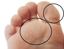 calluses-on-foot