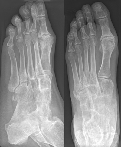 Ankle arthritis treatment