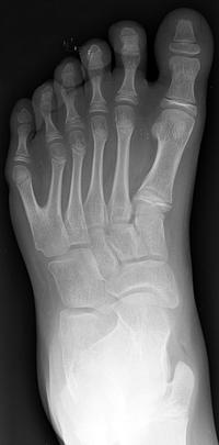 feet polydactyly